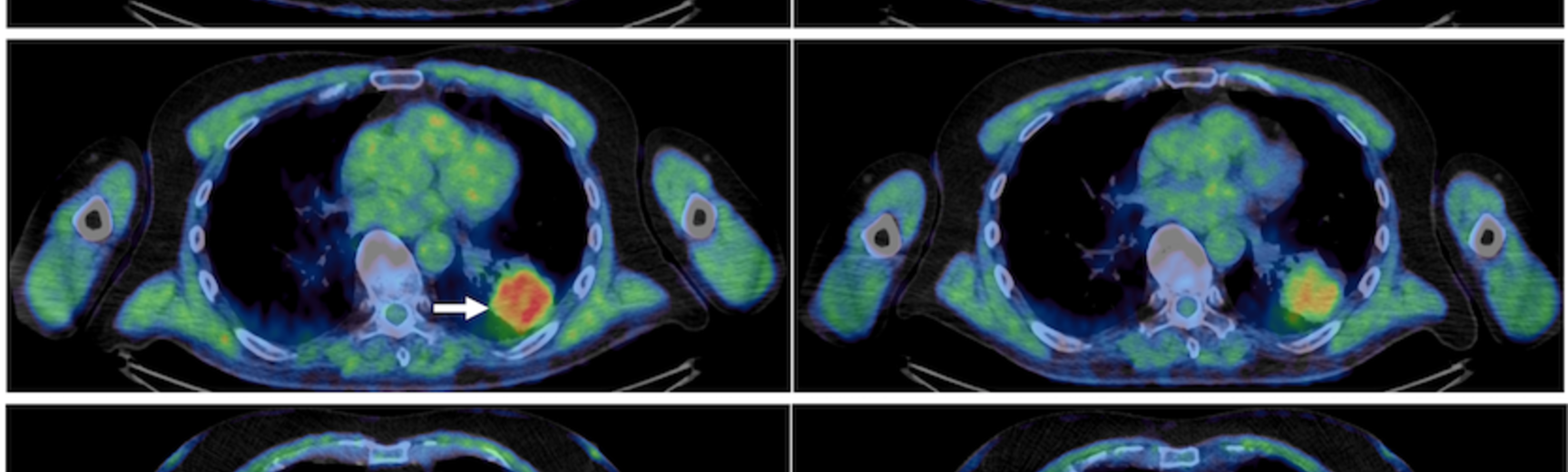 Pre and post atovoquone treatment lung scans in three patients, pre on the left, post on the right. The reduced amount of high intensity red references greater oxygen and thus a reduction in hypoxic environments.